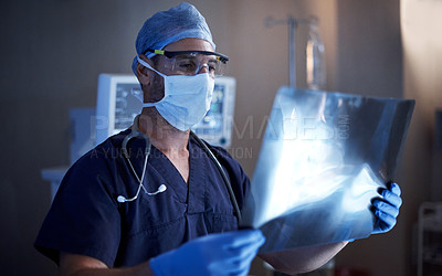 Buy stock photo Shot of a surgeon looking at a patient's x-ray in an operating room