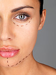 Face lift - Woman before plastic surgery