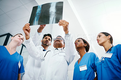 Buy stock photo Shot of a group of medical practitioners analyzing x-rays in a hospital