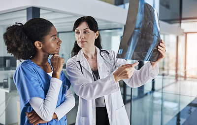 Buy stock photo Shot of two doctors discussing the results of an X-ray in a hospital