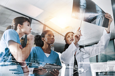 Buy stock photo Cropped shot of a group of doctors discussing the results of an X-ray in a hospital