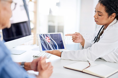 Buy stock photo Shot of a female doctor going over x-ray results on a digital tablet with a senior patient in her office