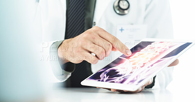 Buy stock photo Cropped shot of an unrecognizable male doctor explaining scan results displayed on a digital tablet to a patient in his office